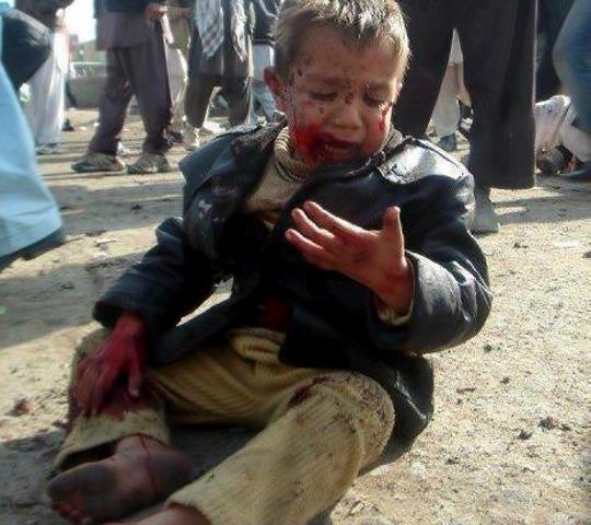 Niño herido en Afganistán